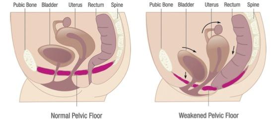 pelvic-floor-dysfunction
