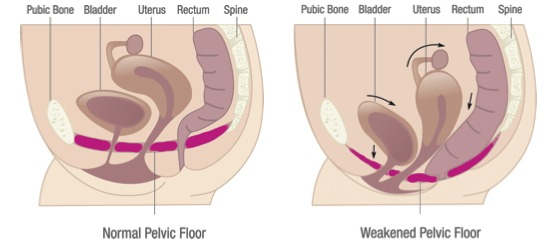 pelvic-floor-dysfunction